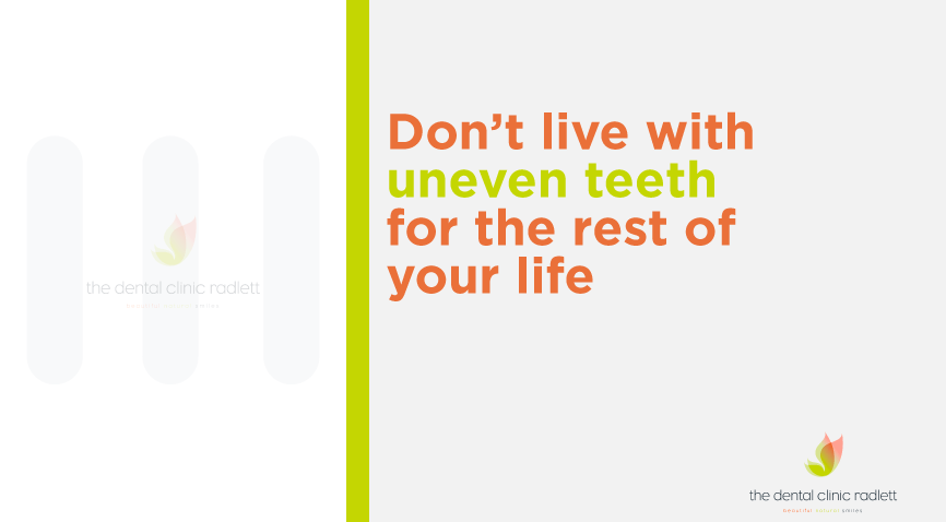 5 things you should know about having your teeth straightened