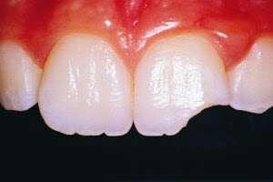 broken-tooth1