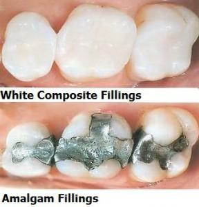 whitefilling