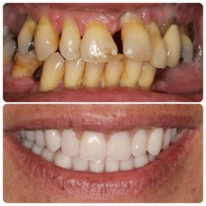 veneers-before-after-feb