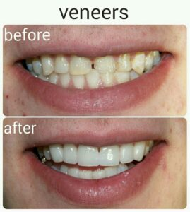 veneers-smile-2