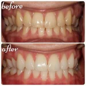 whitening-smile
