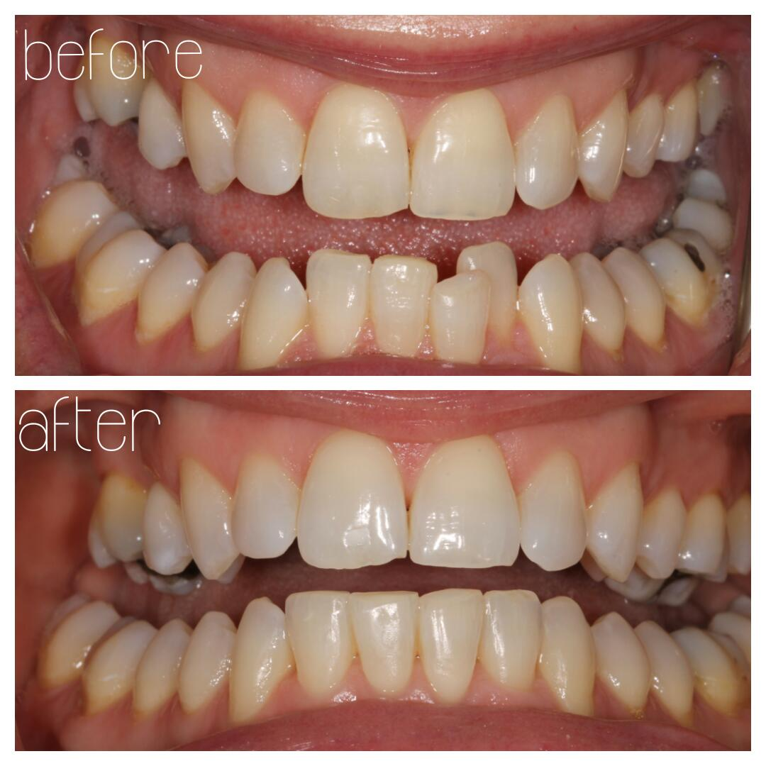cfast orthodontics case study