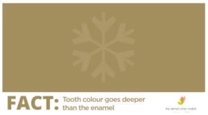 teeth whitening advice dental clinc radlett