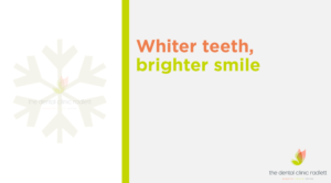 5 things you should know about teeth whitening